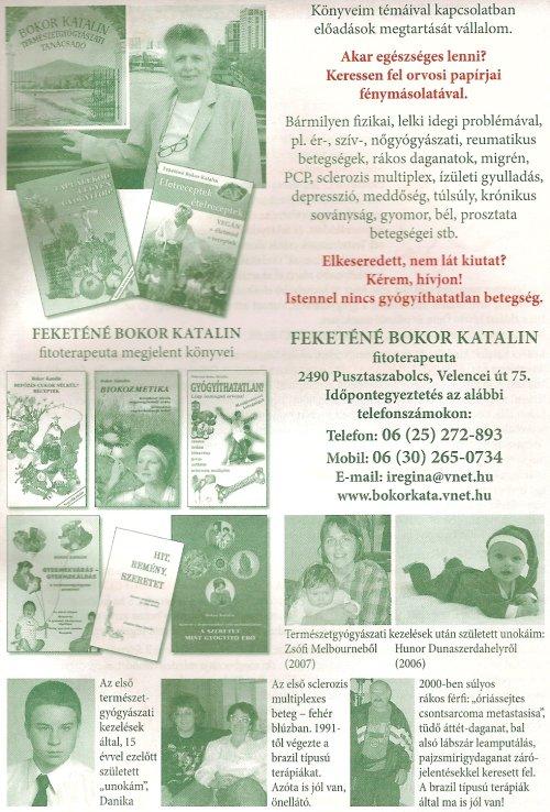 Prosztata problémák - Budai Egészségközpont